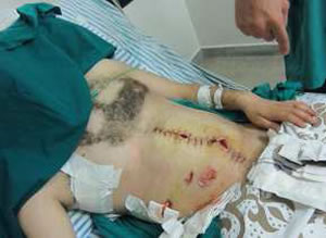 Syria-protester-in-hospital